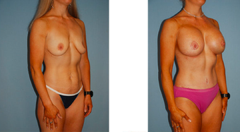 Tummy tuck, breast lift with implants, liposuction