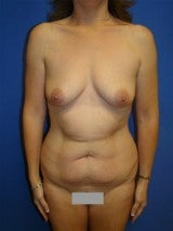 Breast Augmentation Liposuction and Abdominoplasty