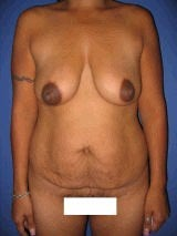 Tummy Tuck (Abdominoplasty), Breast Enhancement, Mommy Makeover