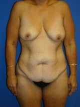 Breast Lift with Implants, Extended Tummy Tuck,