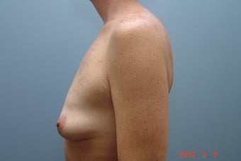 Non-Lipo Abdominoplasty and Subfascial Breast Augmentation with Pursestring Mastopexy