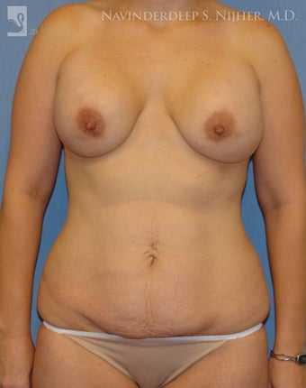 Revision of Breast & Abdominoplasty