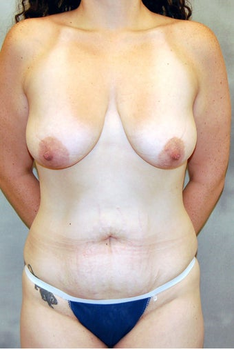 Abdominoplasty and Mastopexy with Implants