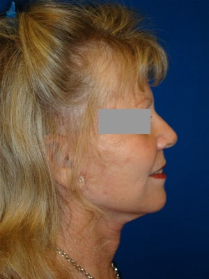 Face and Neck Lift Surgery