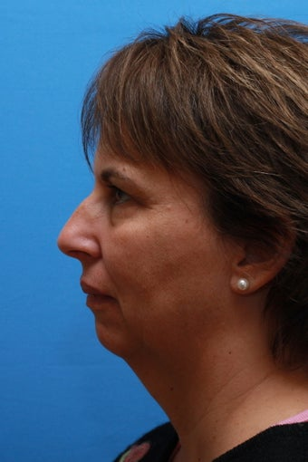 Necklift and Chin Enhancement