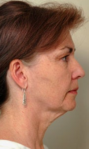 Before and After Neck Lift (Side View)