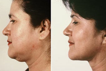 Necklift with Jowl Liposuction