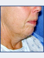 Neck Lift and Chin Implant