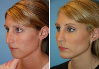 Chin Implant, Rhinoplasty