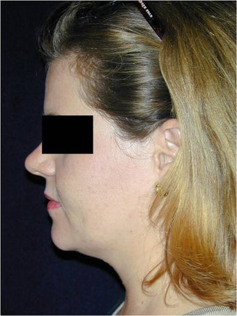 Neck Liposculpture