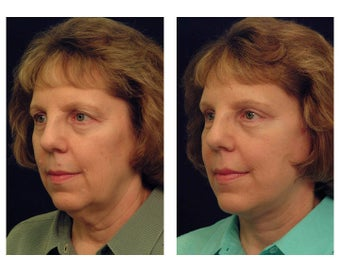 Lower Facelift and Neck