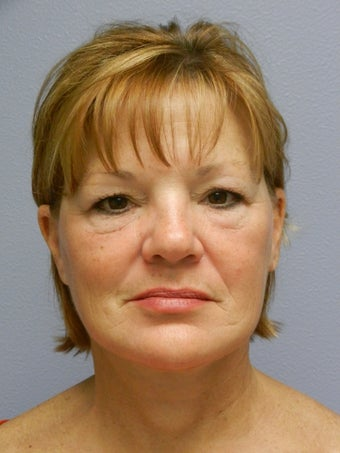 Lower Face with Neck Lift