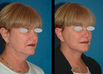 Neck lift and Mini-facelift