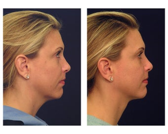 Neck Lift & Lower Facial Rejuvenation
