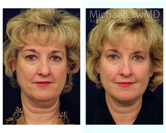 Facial Rejuvenation - Neck Lift