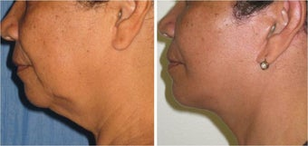 Neck Lift and Liposuction