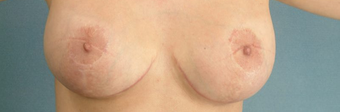 Areola Reduction and Breast Augmentation