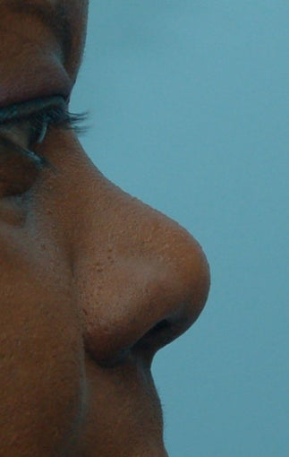 Rhinoplasty, Non-Surgical