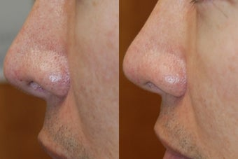 Non-Surgical Rhinoplasty Lowering Nostril Height