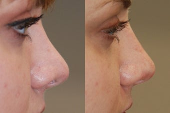 Non-Surgical Rhinoplasty. Profile view.