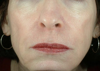 Liquid Facelift (Injectables)
