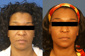 Facelift, Laser Skin Rejuvenation