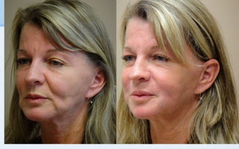 Liquid Facelift with Female