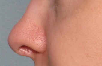 Juvederm in the nose