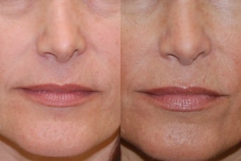 Non-Surgical Rhinoplasty with Silikon-1000. Nostril lowering after previous rhinoplasty surgery.