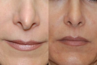 Non-Surgical Rhinoplasty with Silikon-1000 for nostril asymmetry and a pinched tip after previous Rhinoplasty Surgery.