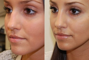 Non-Surgical Rhinoplasty and Lip Augmentation with Silikon-1000