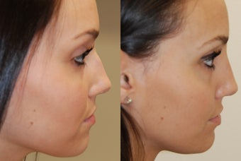 Non-Surgical Rhinoplasty with Silikon-1000. 3 treatments