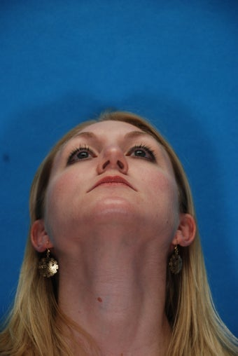 Rhinoplasty (nose job, nasal surgery)