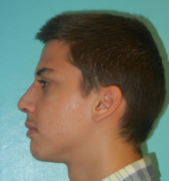 Male Nose Job- Rhinoplasty