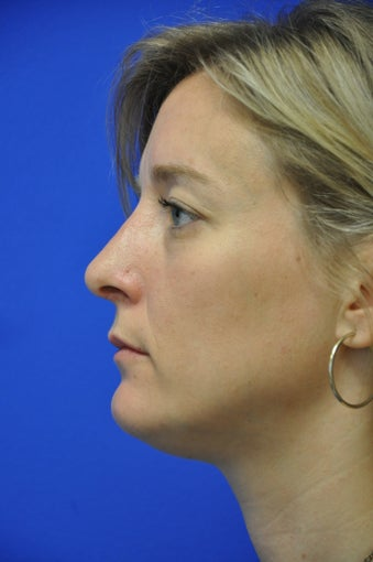 Nasal airway surgery with cosmetic improvment