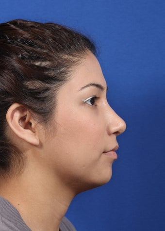 nasal airway surgery with cosmetic benefits