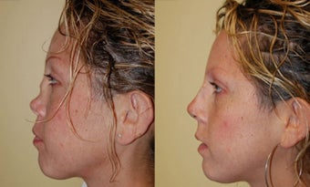 Revision Rhinoplasty Nose Surgery