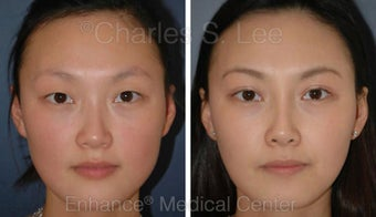 Blepharoplasty and Rhinoplasty