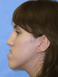 Orthognathic Jaw Surgery, Setback of Lower Jaw
