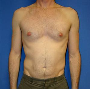 Pectoral Augmentation Surgery