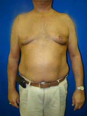Pectus Excavatum, Chest Wall Reconstruction Surgery