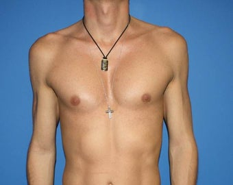Pectoral Implants, Chest Augmentation