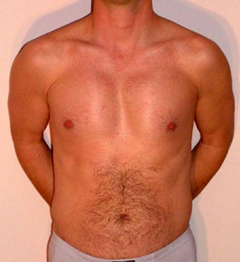 Male Chest Enhancement