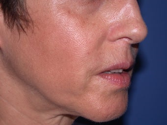 Before & After Perlane to the nasolabial folds