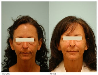 Injectable Fillers (Restylane/Perlane)