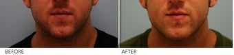 Male Lower Face Enhancement