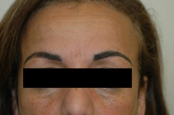 Permanent Makeup Removal Los Angeles Before and After Pictures