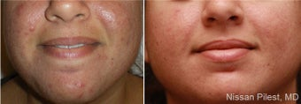 Photo Dynamic Therapy for Acne
