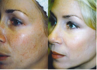 Intense Pulsed Light Treatment