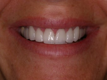 Porcelain Veneers and Porcelain Crowns